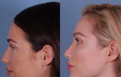 Lady Cosmetic Surgeon in Bangalore Hair-Transplantation