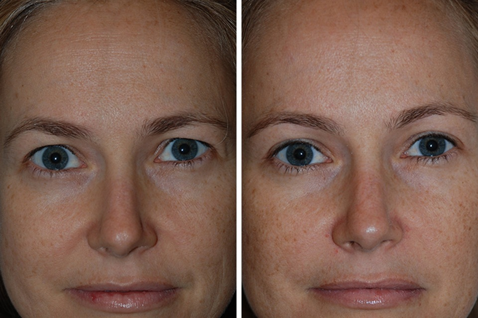 Lady Cosmetic Surgeon in Bangalore