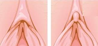 Clitoral Hood Reduction