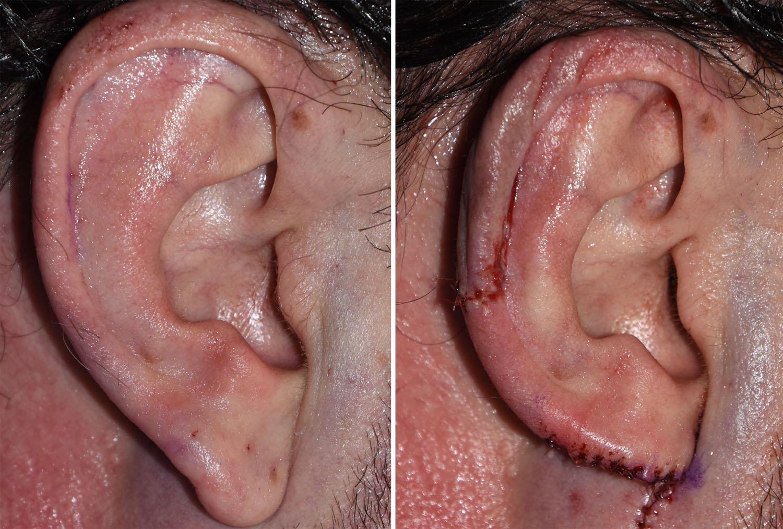 Macrotia Ear Reduction