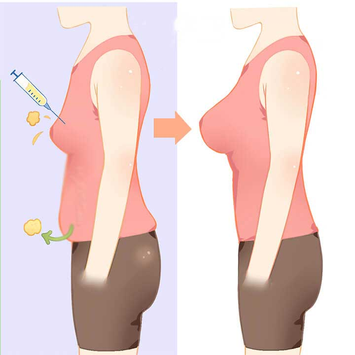 Breast_Augmentation_Fat_Grafting