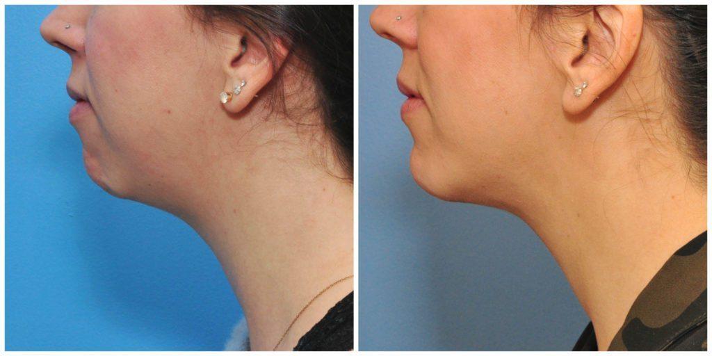 Chin_Enhancement_Surgery