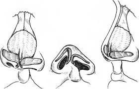 Cleft Lip Nasal Deformity